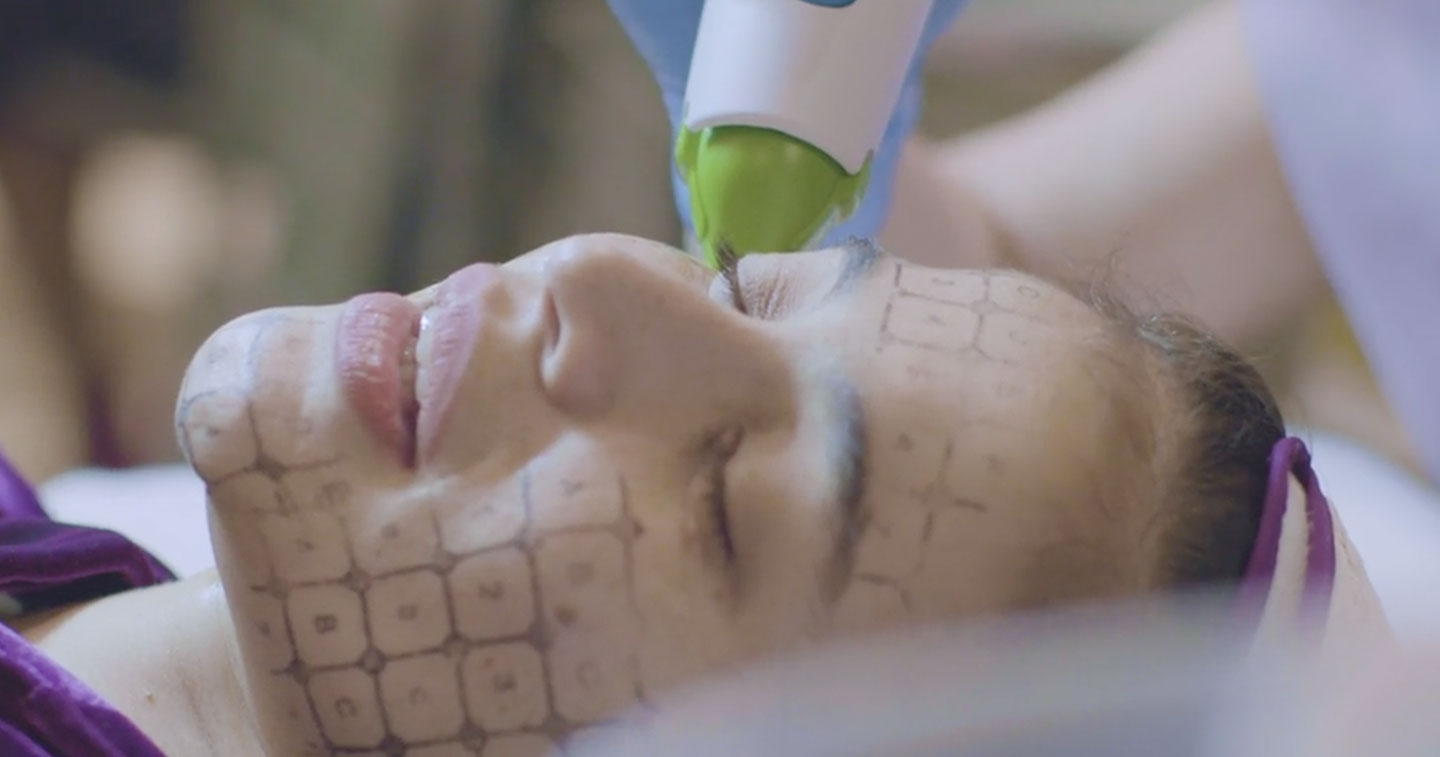 Lifestyle: Belo Brings Thermage FLX Technology into the Philippines
